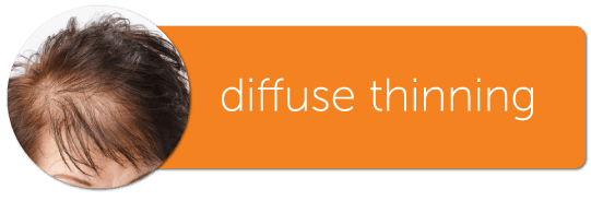 diffuse thinning